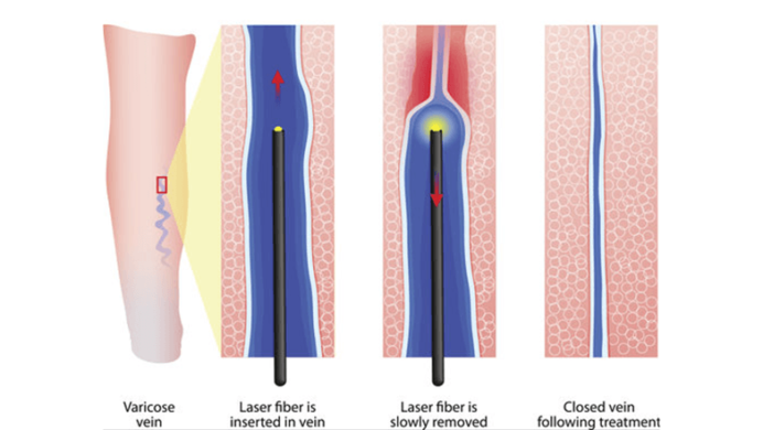 endovenous thermal ablation