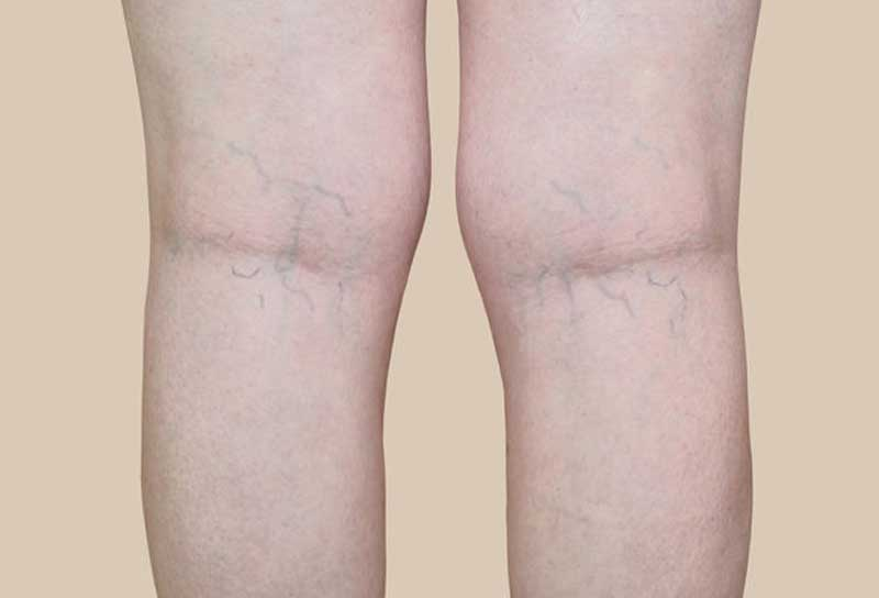 san-diego-varicose-vein-treatment-before-after