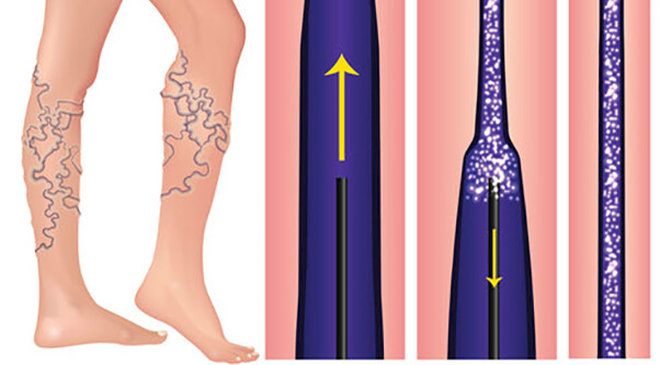 Sclerotherapy is a Safe and Effective Solution to Problem Veins