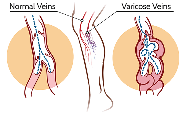 Causes of Venous Insufficiency