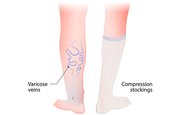 How venous insufficiency is treated